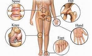 about_arthritis